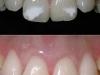 manchas-en-dientes