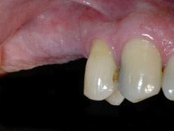 03.ImplantsSectorPosteriorMaxil.ar01