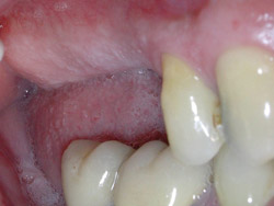 03.ImplantsSectorPosteriorMaxil.ar02