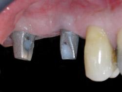 03.ImplantsSectorPosteriorMaxil.ar06