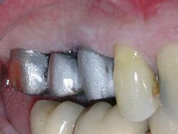 03.ImplantsSectorPosteriorMaxil.ar07