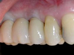 03.ImplantsSectorPosteriorMaxil.ar09