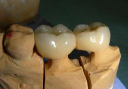 04.ImplantsCirconia-aMandibula05