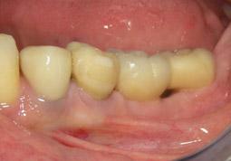 04.ImplantsCirconia-aMandibula06