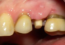 05.ImplantUnitariCirconia04