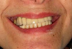 Rehabilitació completa fixe maxilar sobre implants amb dents de ceràmica