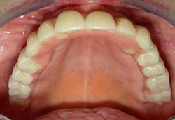 Rehabilitació completa fixe amb dents de resina
