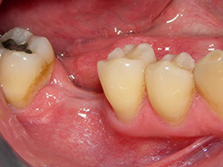 Implant unitari a la mandíbula